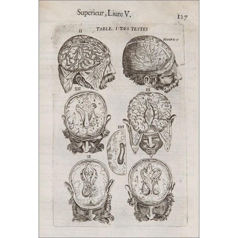 """Cirugía, 1649. """"Les Oeuvres De Chirurgie De Jacques Guillemeau"""""""